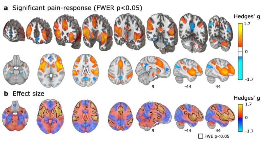プラセボ効果は本当に痛みに関する脳神経反応を軽減させる
