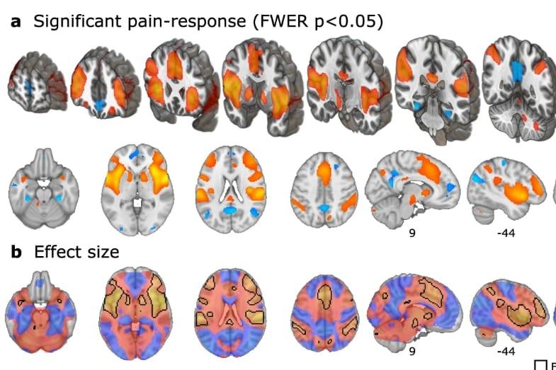 プラセボ効果による脳神経活動を記録