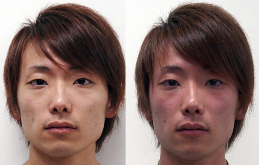 フラッシング反応の1つである顔面の紅潮を示した例。
