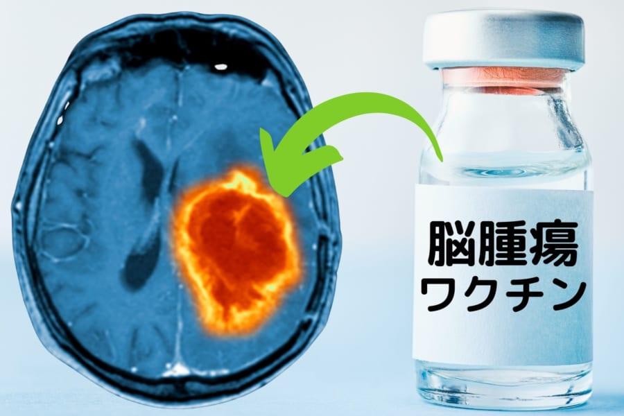 脳腫瘍を「ワクチン」で治療することに成功 人間への治験を実施中
