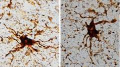 死後に「ゾンビ細胞」が増殖して触手を出している様子