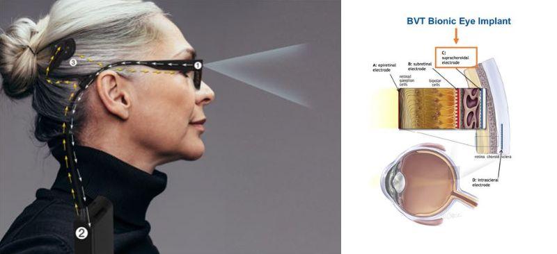 BVT Bionic Eye System