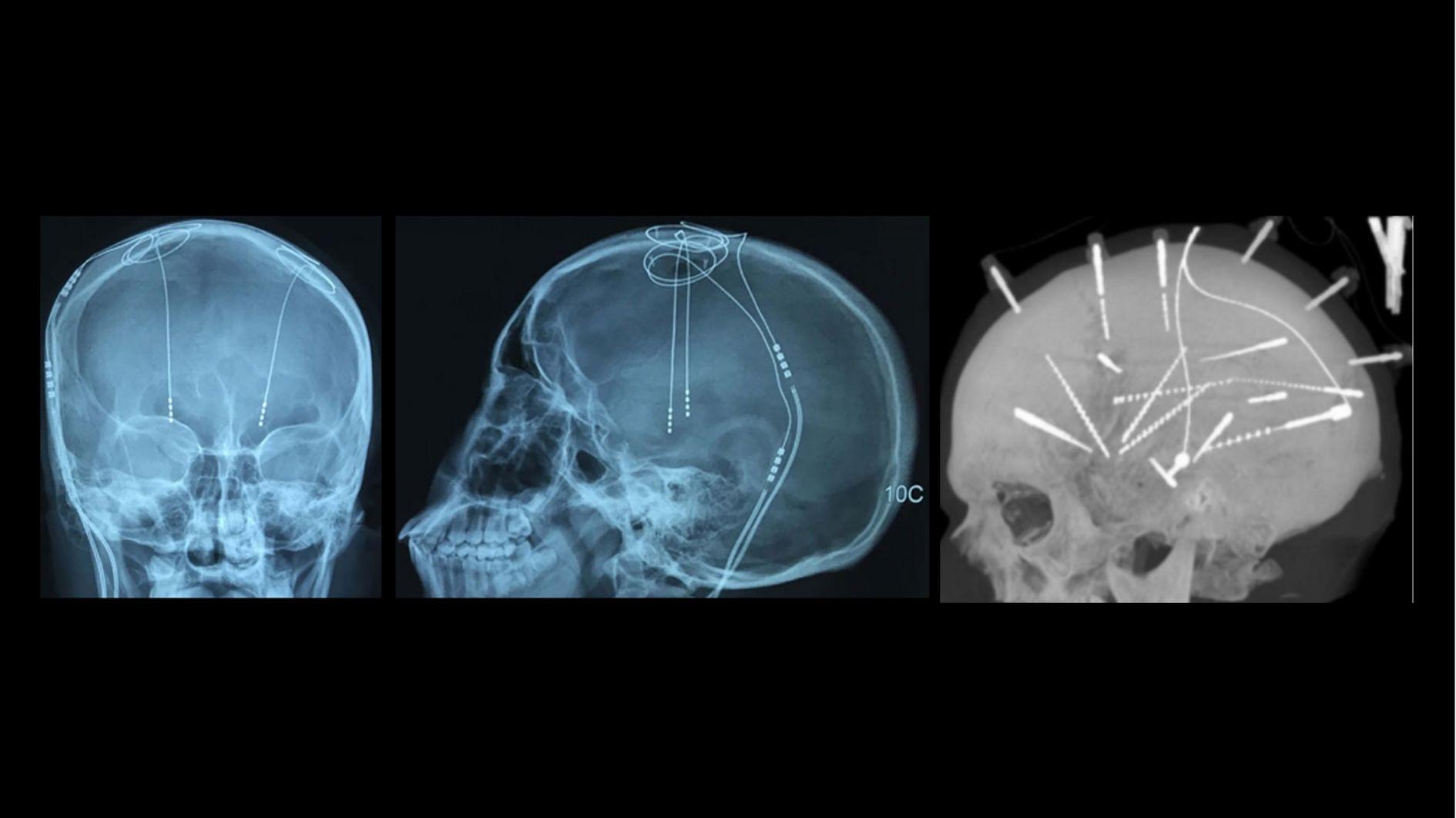 起きたまま脳に電極を刺す手術が行われ強迫性障害を治療することに成功! 左2枚は脳深部刺激療法(DBS)の代表的な画像で、右の1枚は別タイプのEEGと呼ばれる脳の刺激法