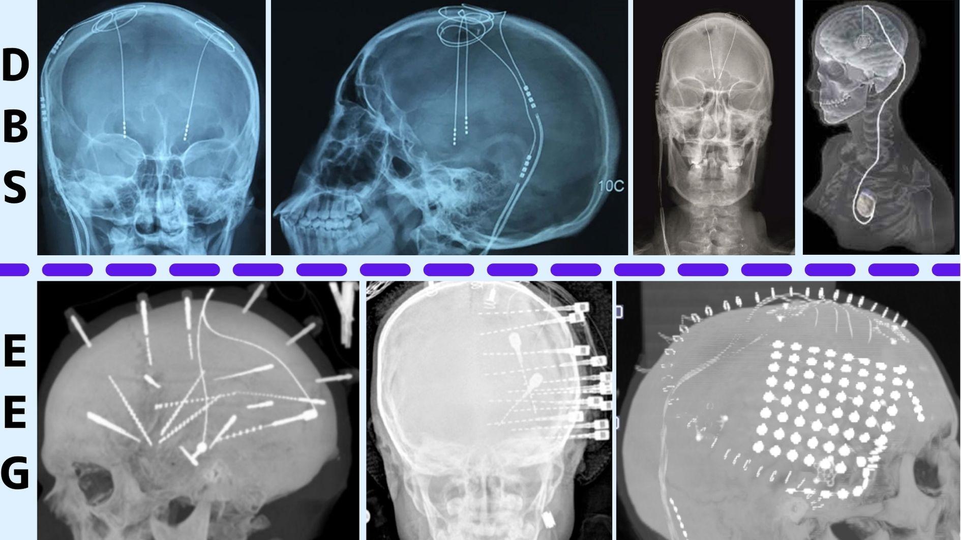 上段が代表的な脳深部刺激療法(DBS)で下段が前回の研究の基礎となったステレオEEG技術。単純な抑制を目的にしたDBSはEEGにくらべて簡素な電極が用いられているのがわかる。