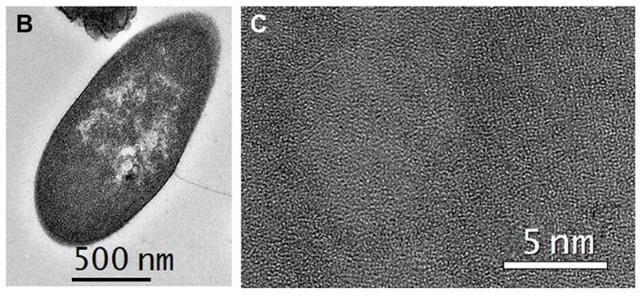 バクテリア断面図の電子顕微鏡。(C)細菌断面内の低倍率画像。