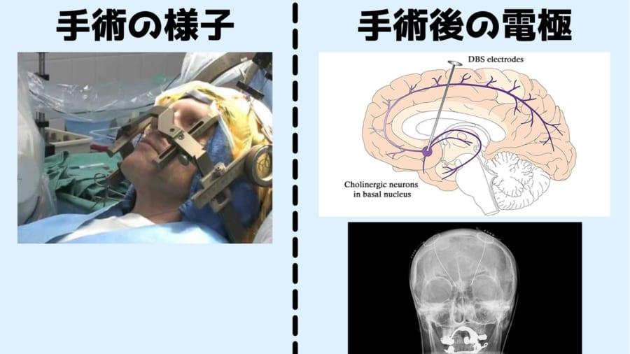 代表的なDBS手術の概要:今回の研究では患者たちは5人中3人が意識がある状態で手術が行われた