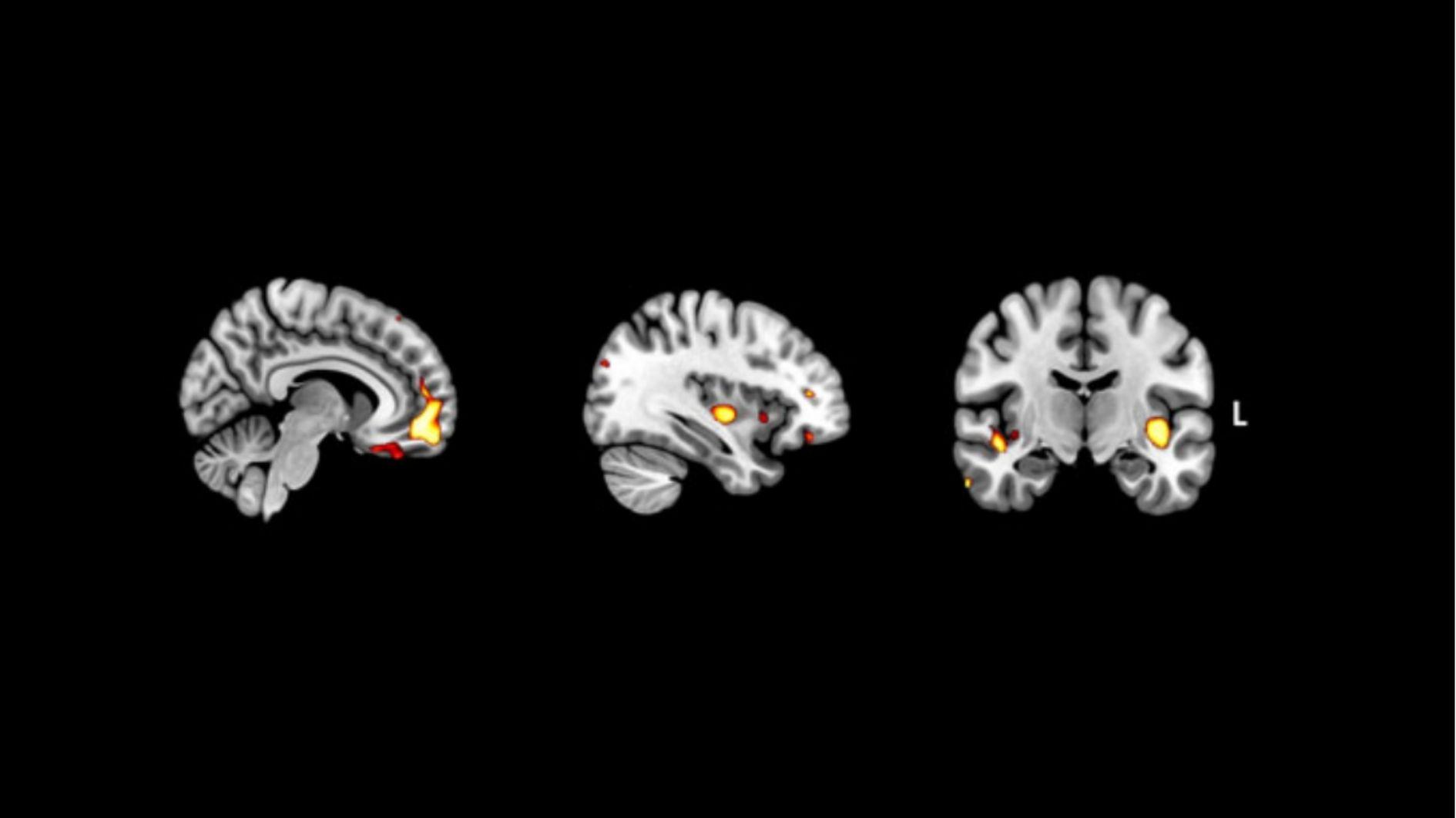 快感を感じる神経回路の死滅が「うつ病」と誤診されている