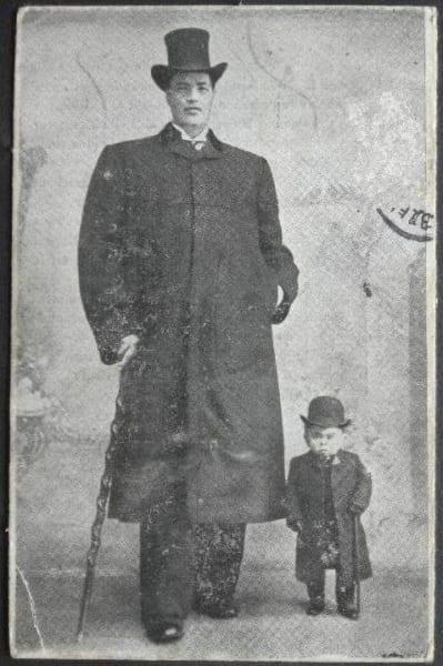 成人後のアダム(左)、右は小人症の人