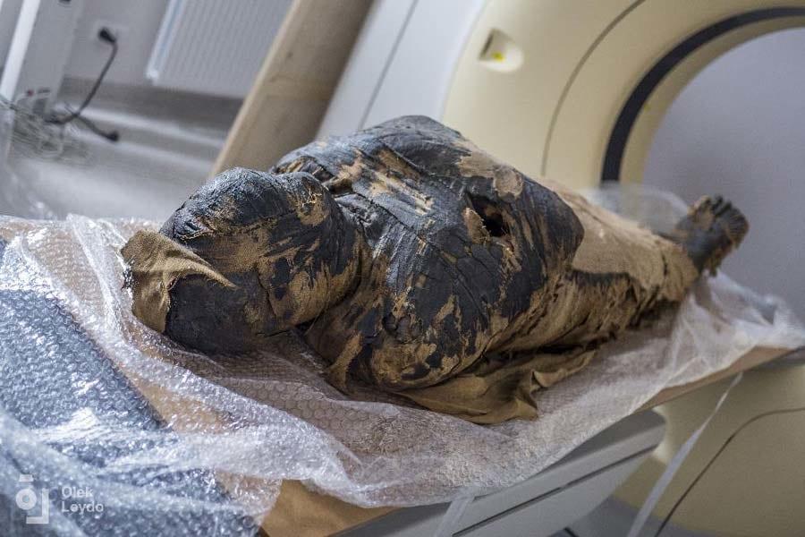 世界初、2000年前の「妊娠したミイラ」を発見! すでに妊娠30週目に入っていた