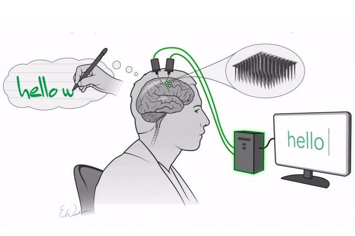 脳に埋めた電極と思考で、文字入力できる技術が誕生! その名も「マインドライティング」