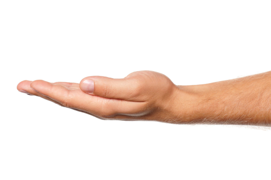 親指をゆっくりと小指側に伸ばすだけ
