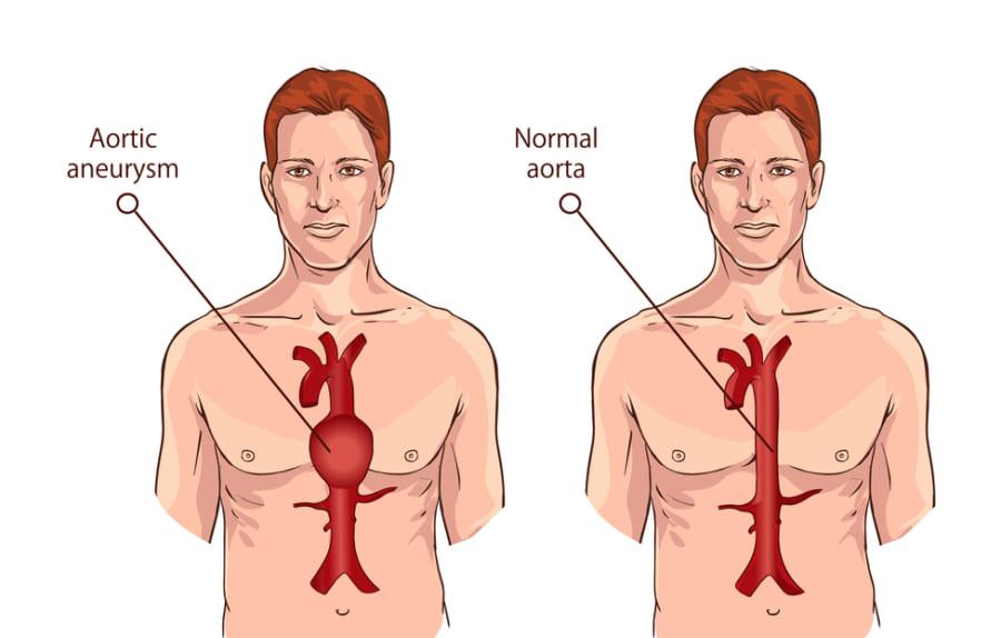 胸部大動脈瘤のイメージ