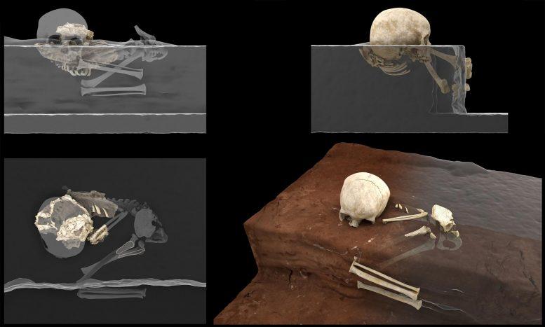 発見時の遺骨の復元図