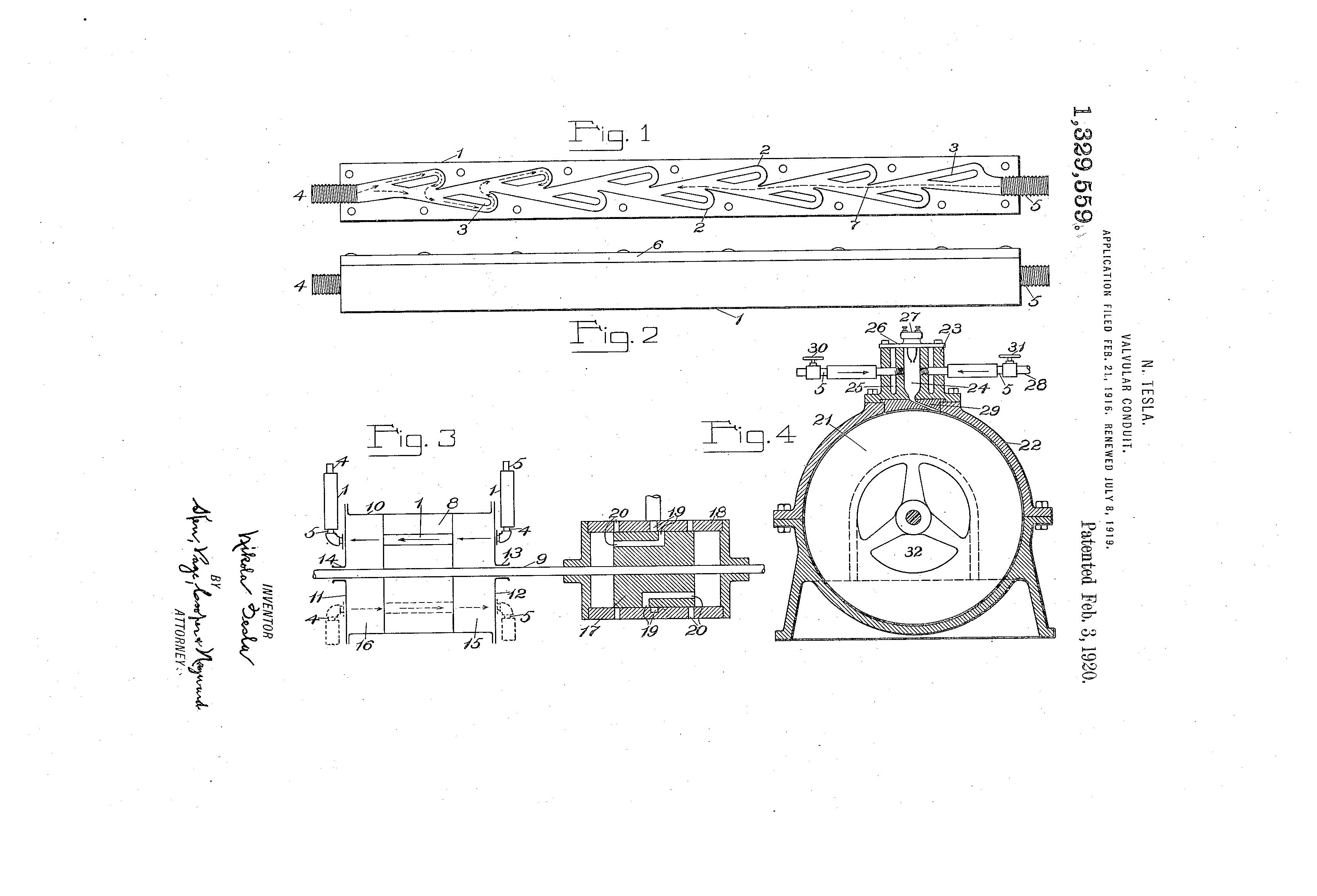 テスラが特許取得した「Valvular conduit」の書類