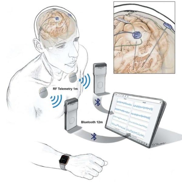 脳活動をリモートで記録・監視できるデバイスが開発される