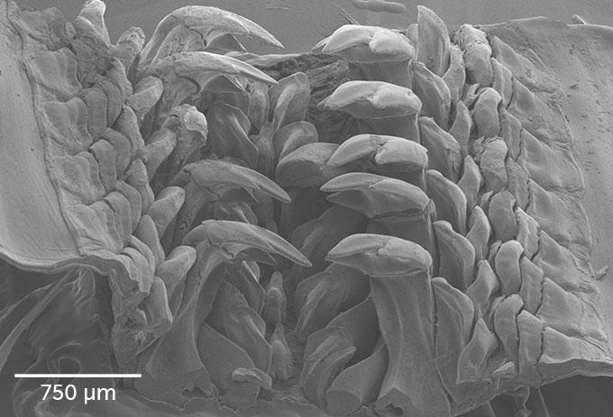 サンタバーバライトを含む歯の拡大イメージ