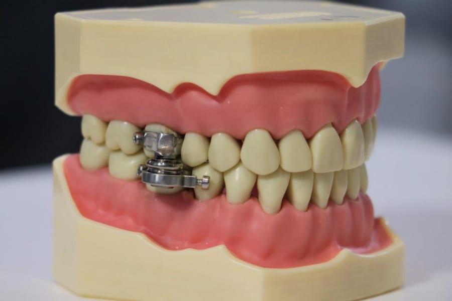 磁石で口を「物理的にロック」する減量装置が開発される