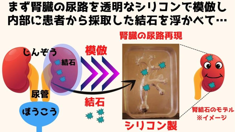 まず腎臓内部の尿路を透明なシリコンで模倣して内部に結石を浮かべ