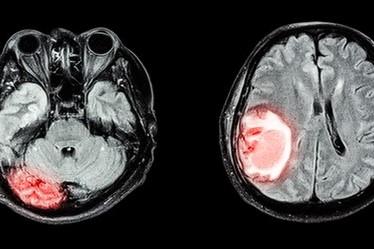「尿検査」から99%の精度で脳腫瘍を判定可能に