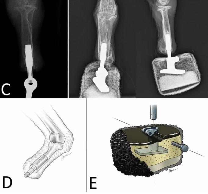 オッセオインテグレーションで義足を移植
