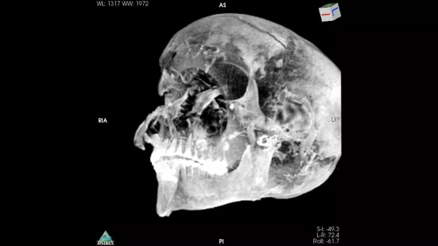 八つ裂きにされたファラオの頭蓋骨のCT画像