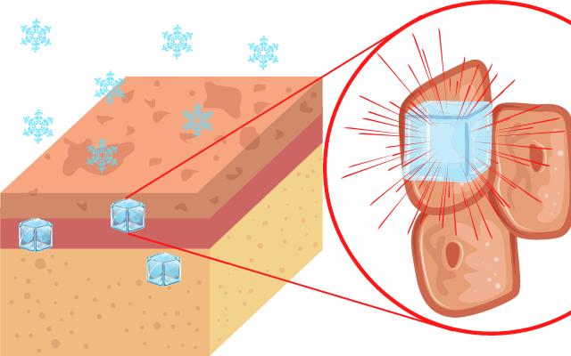 凍傷による「やけど」は細胞が凍りついて破裂する損傷