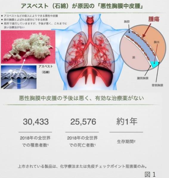 悪性胸膜中皮腫の発症と予後