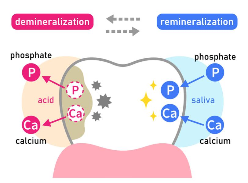 エナメル質の脱灰と再石灰化