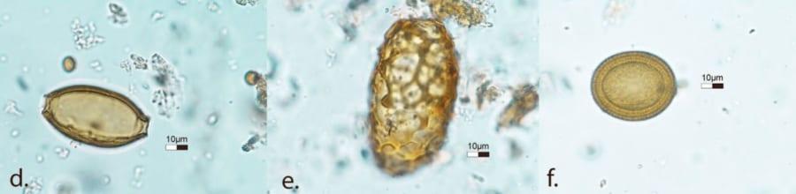 左から鞭虫、回虫、サナダムシ(すべて卵の状態)