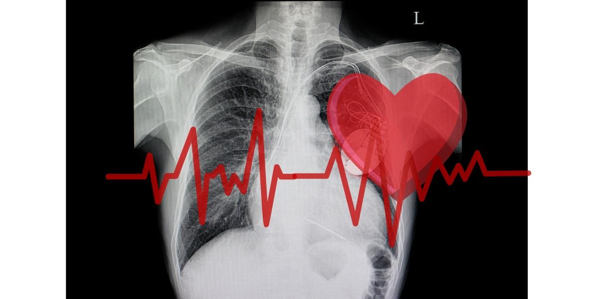新しいペースメーカーは電力を心臓の鼓動から得る