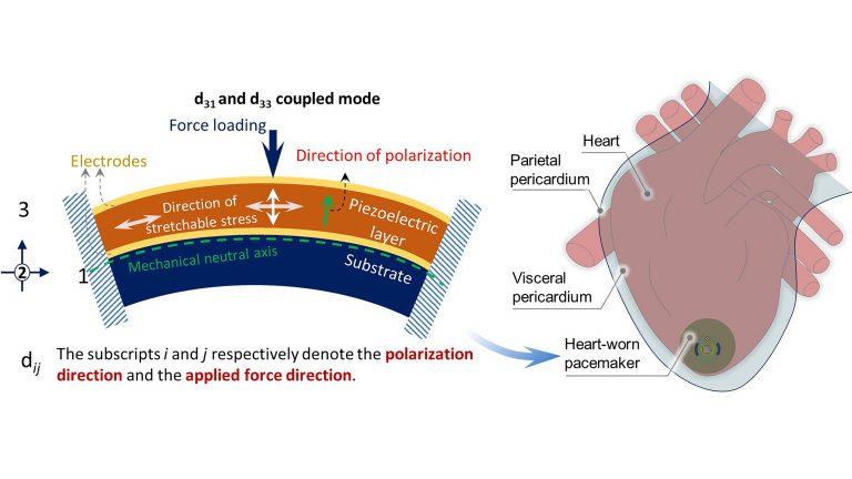 圧電エネルギーを利用して心臓自体の動きで駆動するペースメーカー