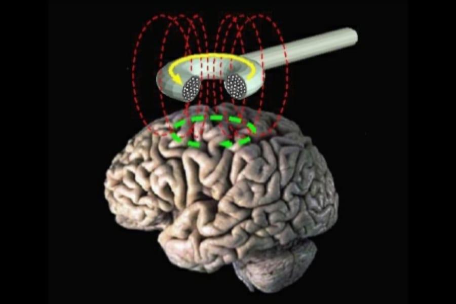 禁煙は「脳の磁気刺激」による快楽の上書きで成功率が上がると明らかに