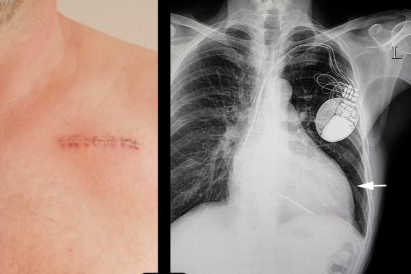 ペースメーカーは皮下への植込み手術で設置される