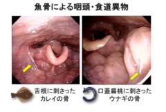 魚骨異物の疾患例