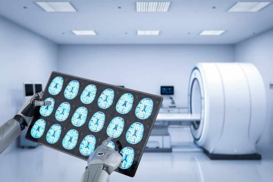アルツハイマー病を99.99%予測する機械学習ツール