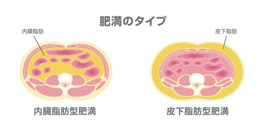 腹部の脂肪分布の違い