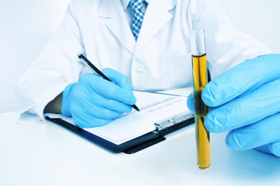 線虫の鋭い嗅覚が尿の「匂い」からすい臓がんを早期発見する可能性が示される