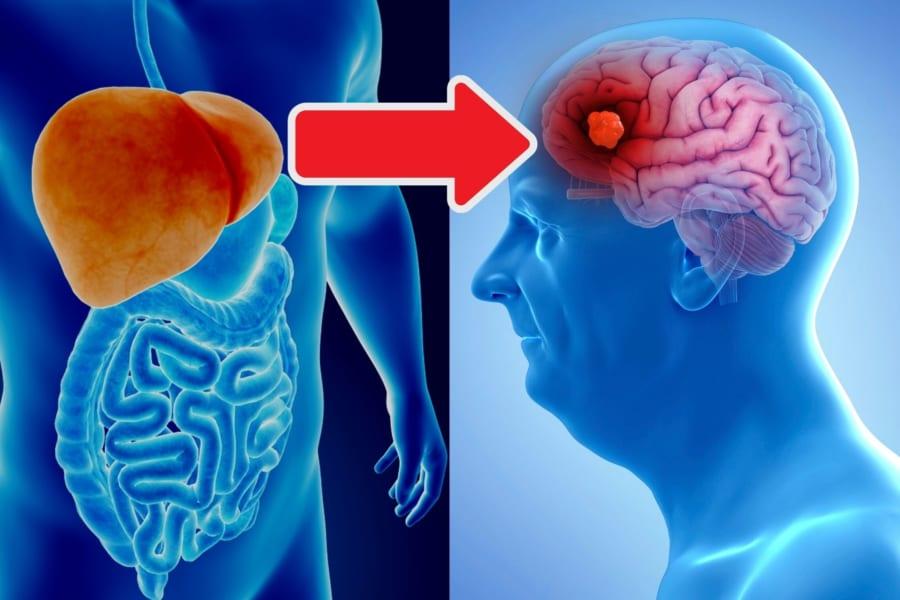 アルツハイマー病の原因「アミロイドβ」の発生源は肝臓の可能性がある