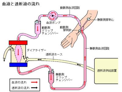 血液透析の仕組み