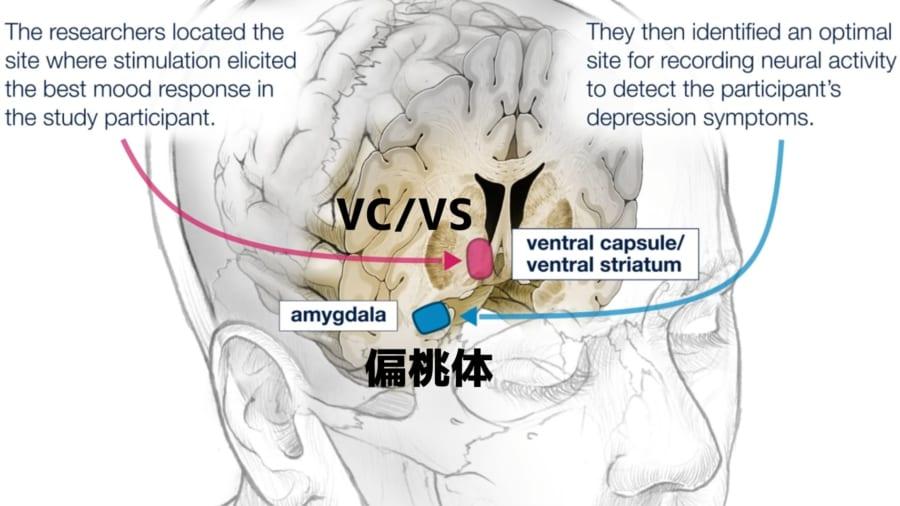 脳への電気刺激を制御チップで自動化し、うつ状態を解消させる技術が登場