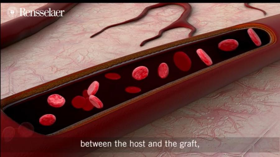 血管付きの「生きた皮膚」を3Dプリントで作成成功