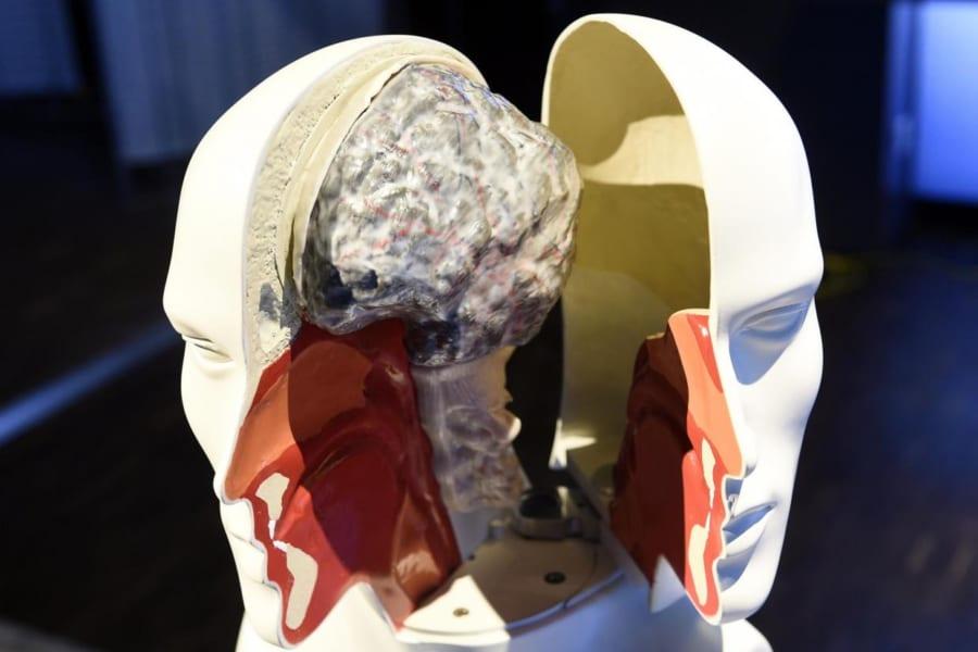 「金持ち脳」と「貧乏脳」は違う。社会的地位による脳構造の違いを示す研究