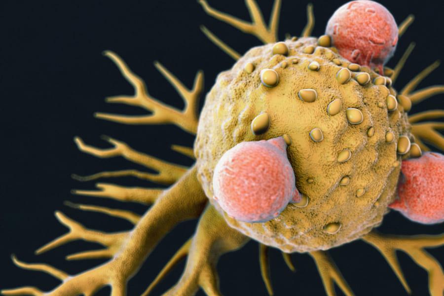 あらゆる癌細胞を攻撃できる「万能型」免疫細胞が発見される