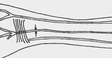 第三の前腕動脈