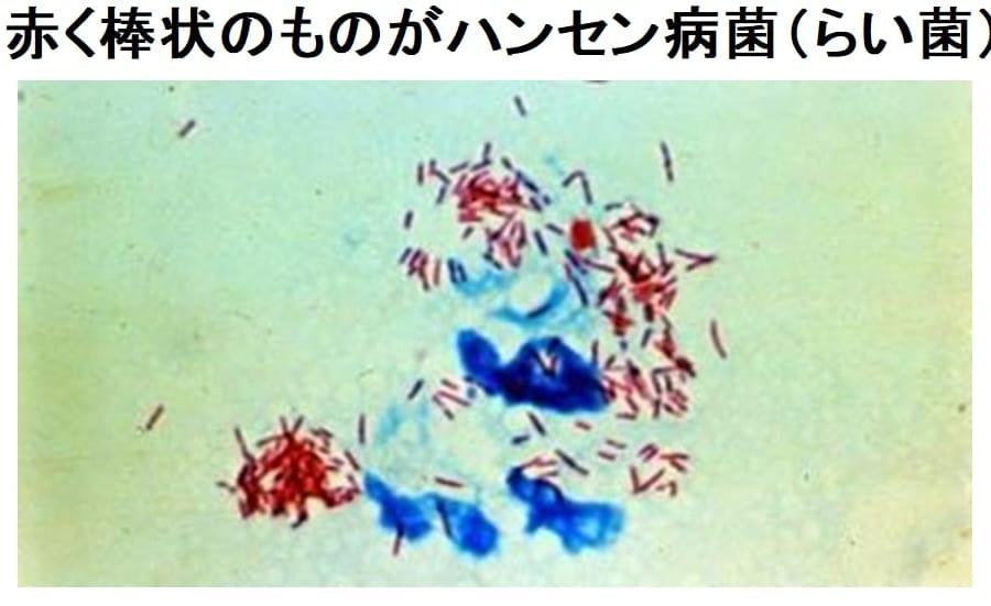 人間を襲ったハンセン病が「チンパンジー」にも感染、 人間の感染では見られない珍しい遺伝子型の菌
