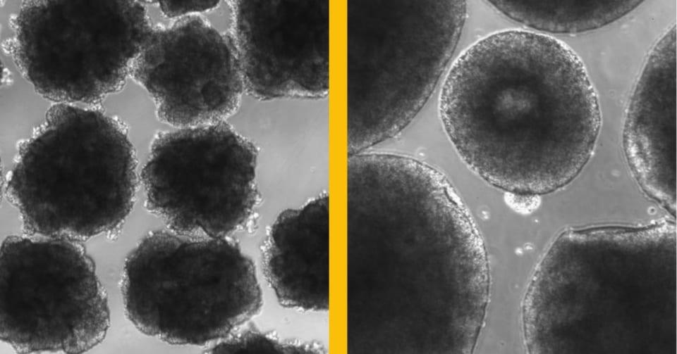 ネアンデルタール人の遺伝子を組み込み「人工培養したミニ脳」が作られる 現代人よりシワが多く早熟型だった