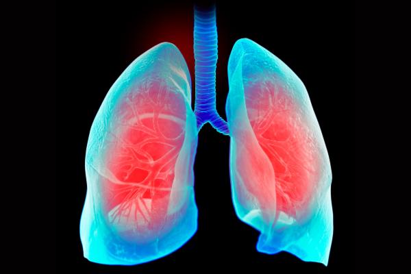 未解明だった「肺の喘鳴音」のメカニズムを音響学者が解明 飛行機の翼も破壊する共振現象が起きていた