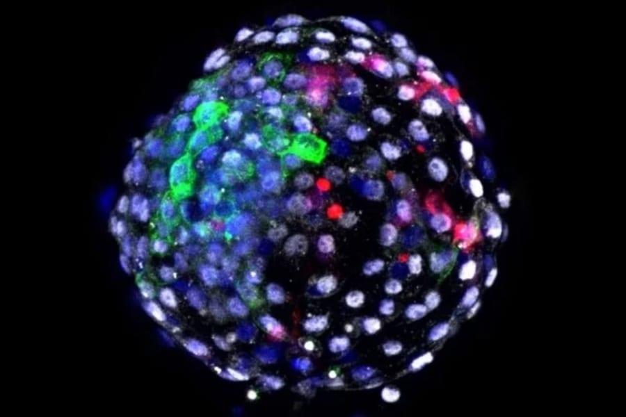 「サルとヒトのキメラ細胞」が実験室で誕生。19日間生存させることに初めて成功