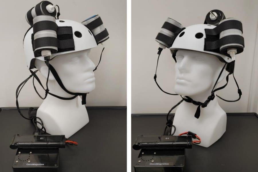 脳腫瘍を縮小させる磁気ヘルメットが開発される