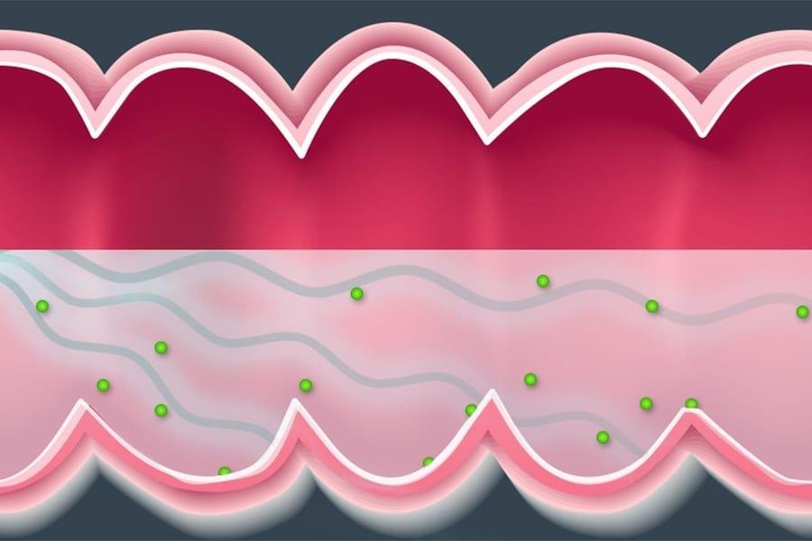 超音波で消化管に薬を押し込む新しい治療法